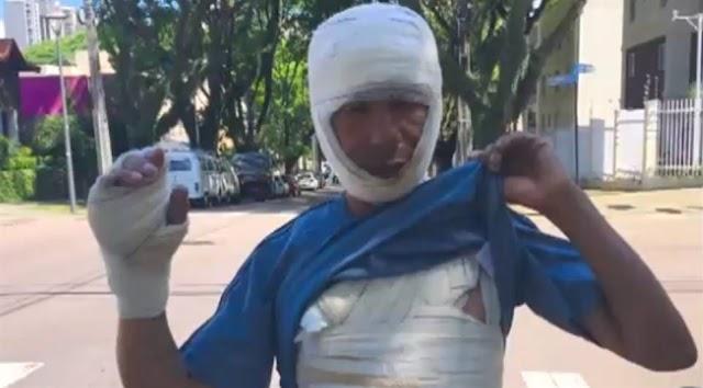 Morador de rua é queimado vivo enquanto dormia; vítima teve 25% do corpo queimado