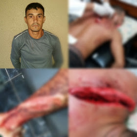 Homem sofre tentativa de homicídio na região garimpeira de Itaituba,PA
