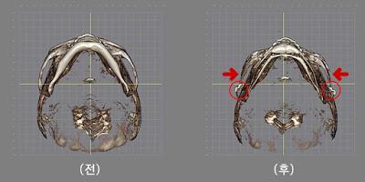 Konfirmasi garis pengecilan tulang pipi lewat 3D-CT