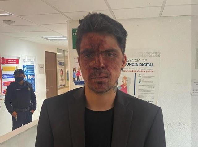 Arturo Montiel Jr., golpeo en pandilla a César D'Alessio