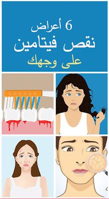 6 أعراض نقص فيتامينات تظهر على وجهك