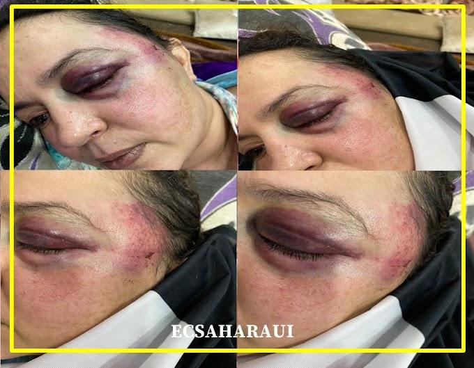 Las mujeres saharauis reprimidas, torturadas, desprotegidas y encarceladas por las autoridades de ocupación marroquíes.