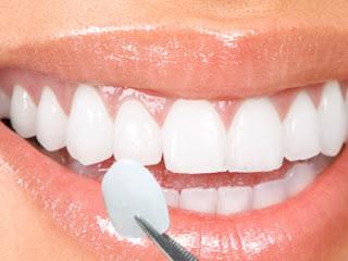 Bọc răng sứ cho răng hô vừa mang lại hiệu quả, vừa có mức chi phí phù hợp với nhiều người.