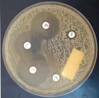 kültür antibiyogram