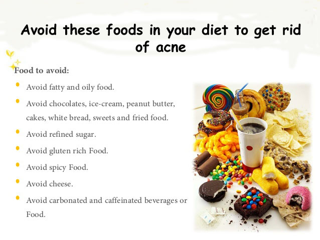 Food To Avoid to Prevent Acne