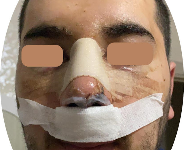 3 days after nose job