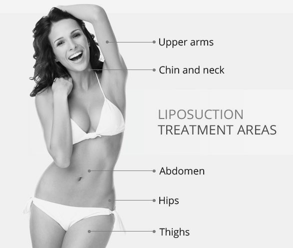 Liposuction Singapore