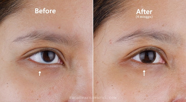 Before After Penggunaan Avoskin Advanced Action Eye Ampoule