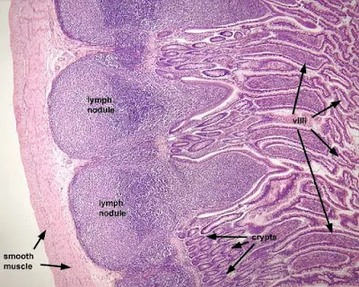 Peyer's patches in small intestine