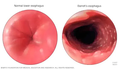 Barretts esophagus: Causes, Symptoms and Treatment