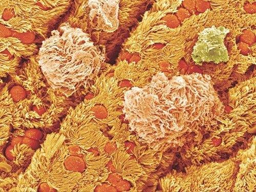 صور و معلومات عن الكبد