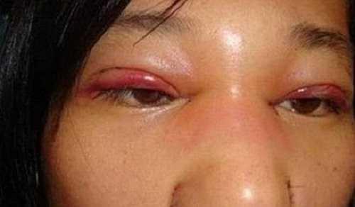 Tác hại khi cắt mắt nhầm địa chỉ là nhiễm trùng mí mắt