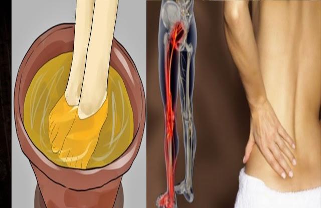 Remèdes fait maison pour décoincer un nerf sciatique