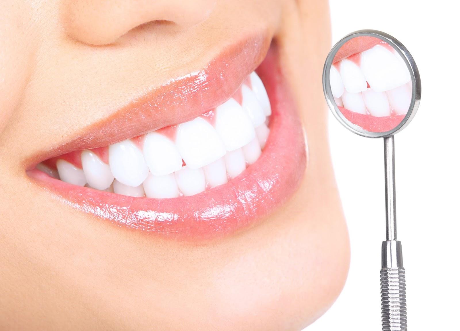 Cara Memutihkan Gigi Secara Alami Insotick
