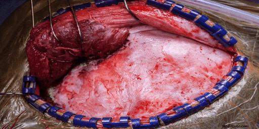 nasopharyngeal-angiofibroma