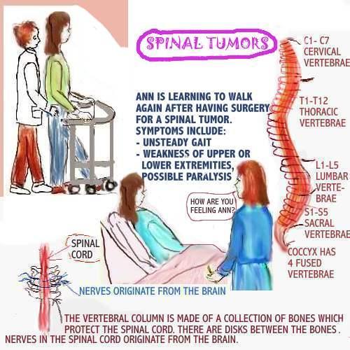 Tumor: Spinal Cord Tumor Symptoms