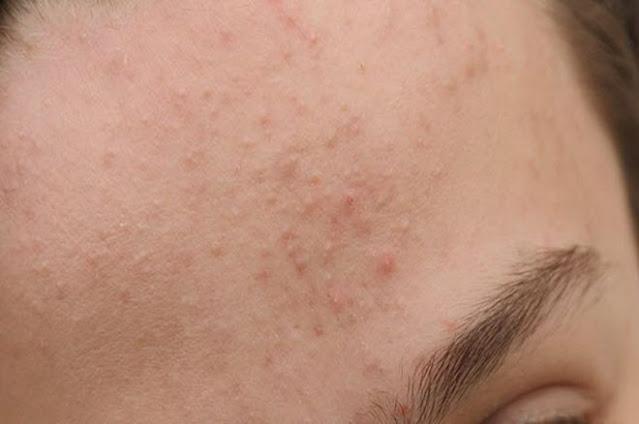 Quy trình 7 bước chăm sóc da đánh bay mụn ẩn chỉ trong 2 tuần