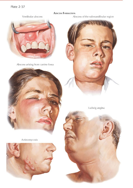 Odontogenic Infections Their Spread and Abscess Formation
