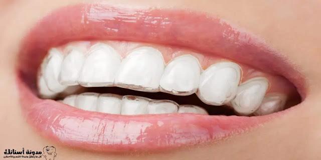 ما هي فوائد تبييض الأسنان في مكتب الأسنان؟ ما الذي يجب مراعاته عند تبييض الأسنان في المنزل؟ كيف تحافظ على أسنانك بيضاء بعد التبييض؟ ما هي مدة بقاء أسناني البيضاء بعد التبييض؟