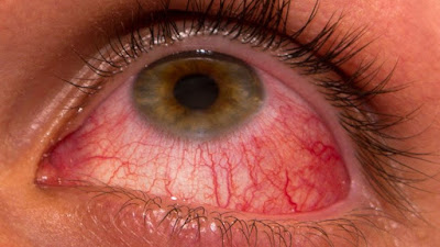 Eye with congestion of conjunctiva due to pink eye