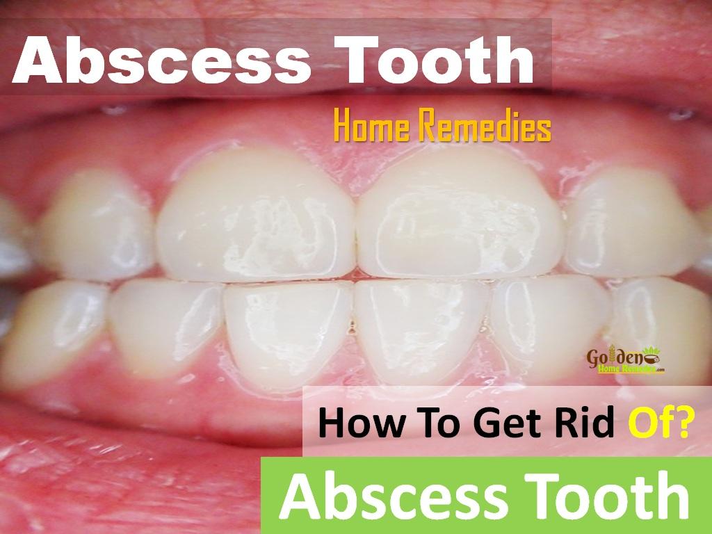 How to treat an abscess