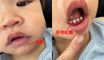 齒齦炎的牙齦發腫發紅