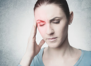 une migraine