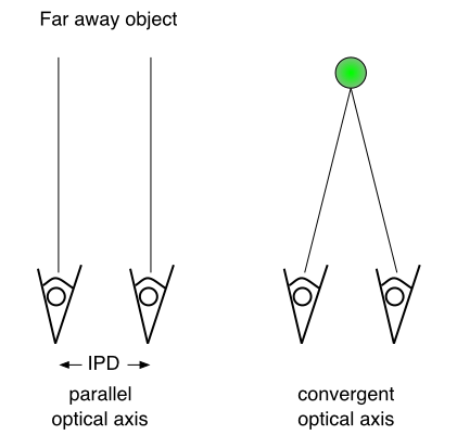 Diagram Of Macular Degeneration, Diagram, Free Engine