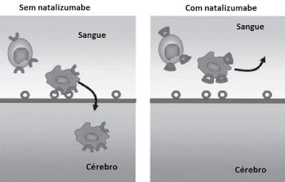 natalizumabe células imunes cérebro açao
