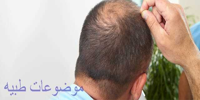 علاج تساقط الشعر الوراثى للرجال بالاعشاب