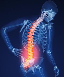 osteopororis prevention