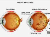 Deteksi Dini Retinopati Diabetika