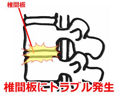 椎間板性の腰痛 神戸やすらぎ訪問マッサージ