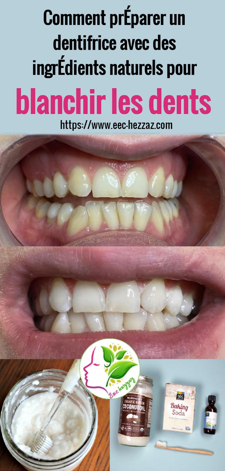 Comment préparer un dentifrice avec des ingrédients naturels pour blanchir les dents