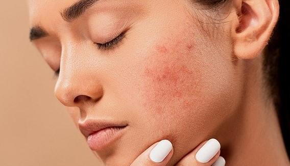 acne-prone-skin-treatment