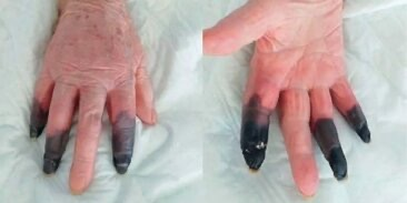Пациентке с коронавирусом ампутировали три пальца, которые почернели после заражения