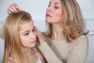 10 Cara Basmi Kutu Rambut dan Telurnya Secara Alami
