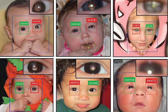 App for an early detection of Leukocoria, Retinoblastoma(Rb), White Eye etc.