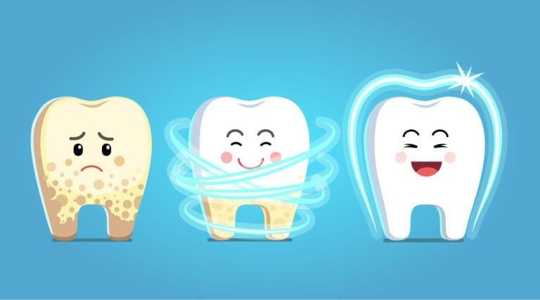 أسعار تنظيف الأسنان من الجير في مصر 2021