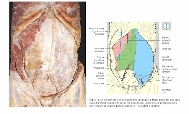 On the right, most of the oblique muscles and all of rectus abdominis have been excised to reveal the posterior wall of the rectus sheath. On the left, all the muscles have been removed to show the parietal peritoneum. The bladder is enlarged.