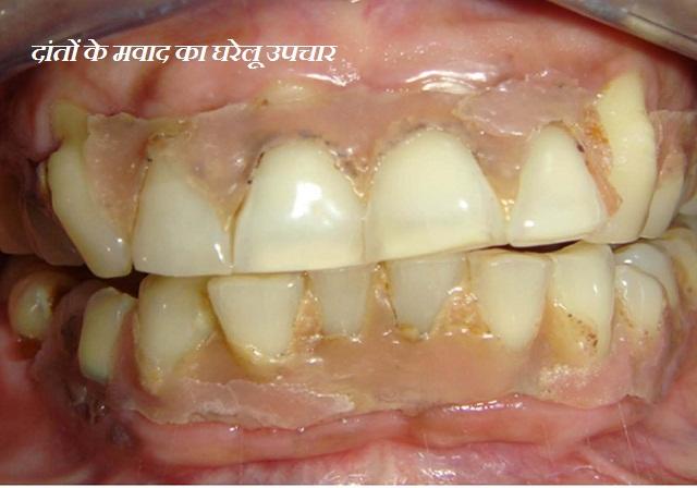 दांतों के मवाद का घरेलू उपचार क्या है