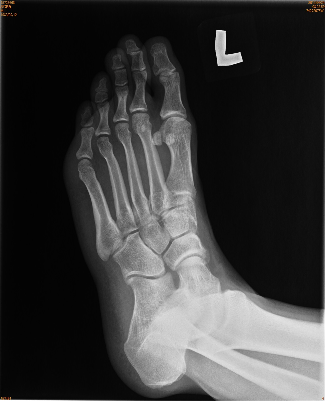 Normal Foot Xray...Xray Of Childs Foot