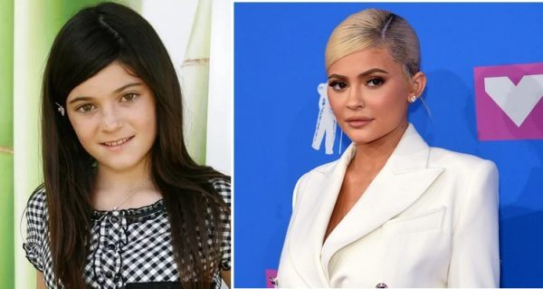 Kylie Jenner Before and After Photos (2008 to 2019)