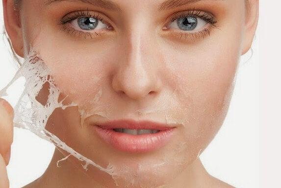Cara Mengatasi Kulit yang Wajah Mengelupas Akibat kosmetik