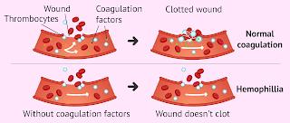 Hemophilia is the most common inherited bleeding disorder