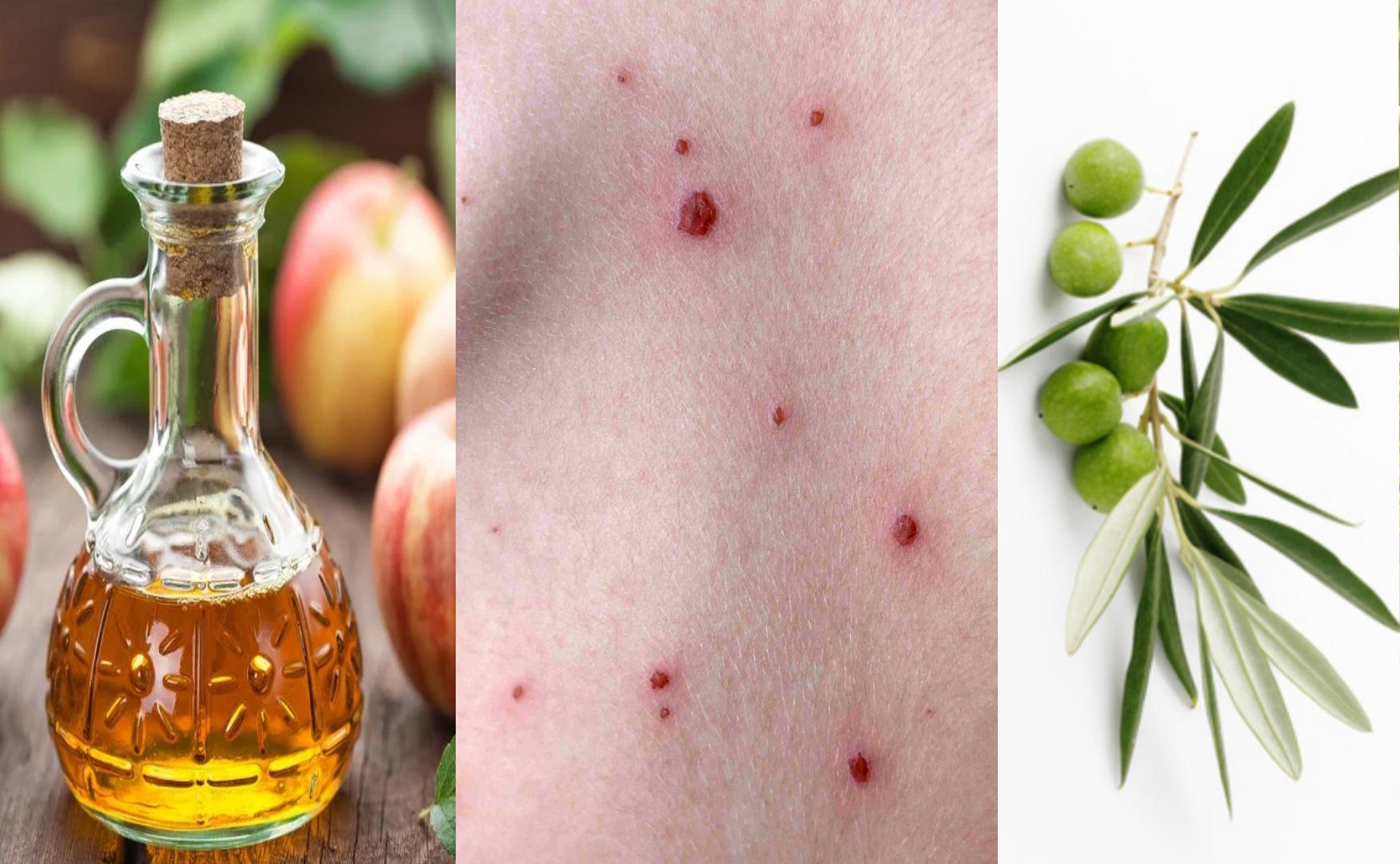 5 moyens naturels pour se débarrasser des champignons de la peau
