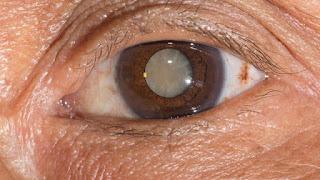 Inilah tips cara mencegah penyakit mata akibat diabetes