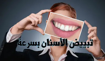 تبييض الاسنان كالثلج وصفه مجربه في يوم واحد وهل هذا ممكن؟