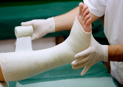 fracture of the leg