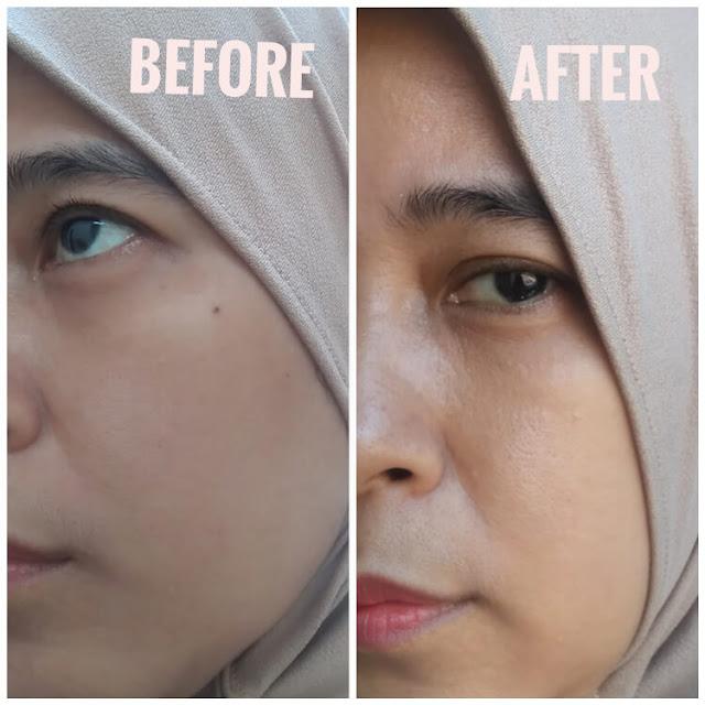 before after pemakaian skincare iunik